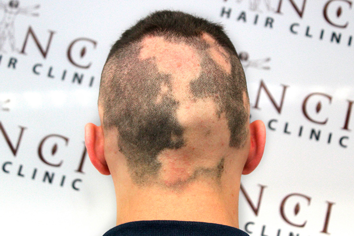 causas alopecia areata